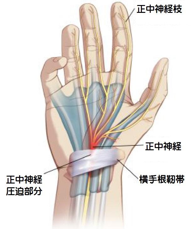 「手根管症候群」の画像検索結果