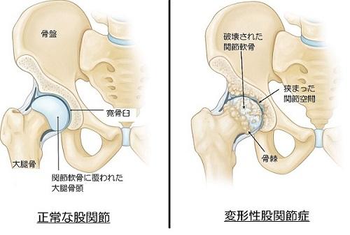 「変形性股関節症 寛骨臼」の画像検索結果